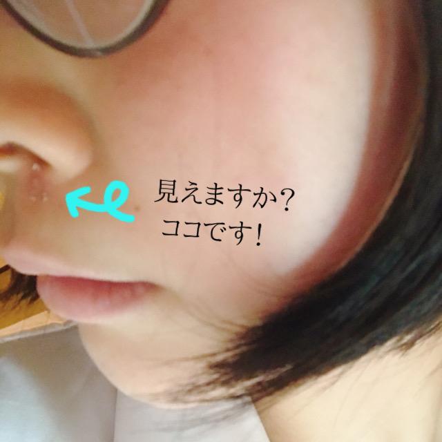 唇 ニキビ